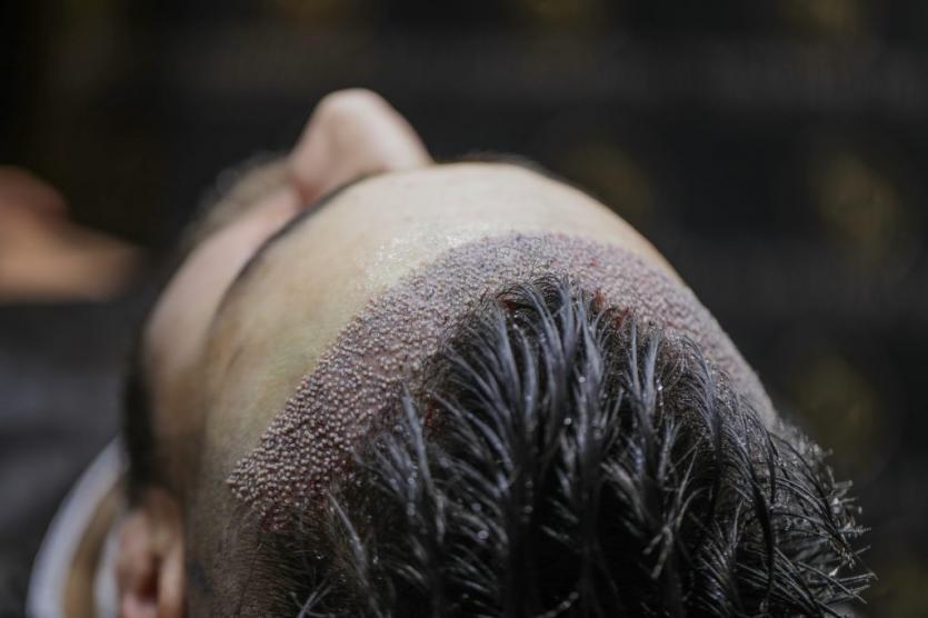 unshaved hair transplant