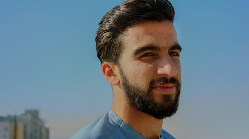 beard moustache transplant