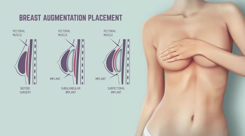 Breast Lift Aesthetics Surgery