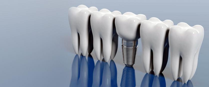 dental estetics