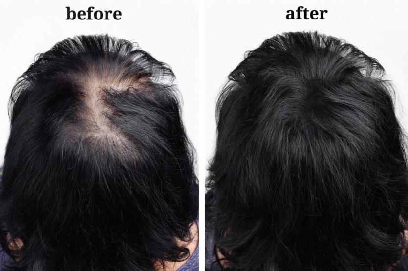 Laser Hair Growth Treatment