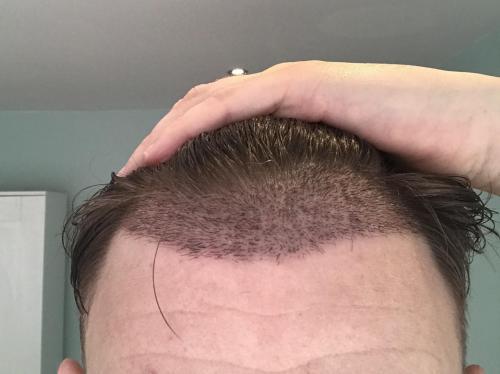 Unshaved Hair Transplant Technique