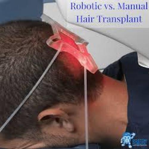 Robotized Hair Transplantation With Newest Technology
