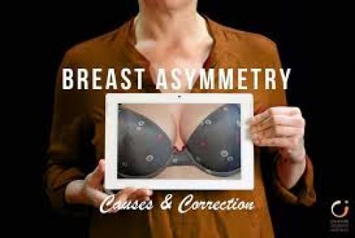 Breast Asymmetry Correction Surgery