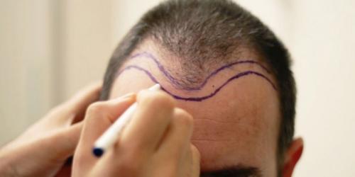 TDF Hair Transplant