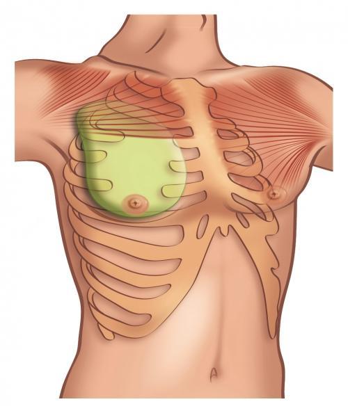 Breast Augmenation Surgery